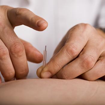 acupuncteur