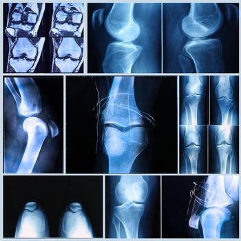 Chirurgien·ne orthopédiste