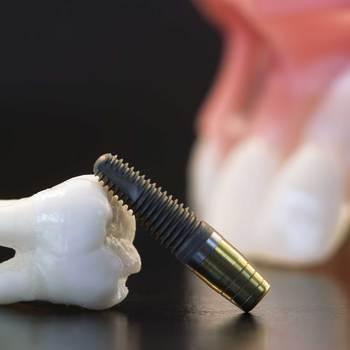 parodontiste